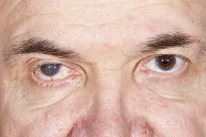 Cataract 0
